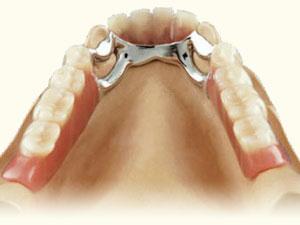 Mit Kronen kombinierte herausnehmbare Zahnersätze